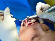 Zahnfüller Amalgam: EU verbietet Amalgam für Kinder und Schwangere