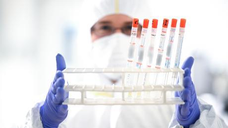44 Menschen haben sich im Landkreis Neuburg-Schrobenhausen mittlerweile mit dem Coronavirus infiziert.