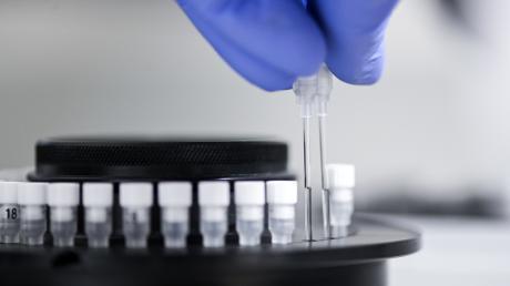 291 Menschen im Landkreis Donau-Ries wurden bislang positiv auf das Coronavirus getestet.
