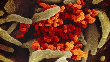 Eine elektronenmikroskopische Aufnahme zeigt das Coronavirus (SARS-CoV-2, orange), das aus der Oberfläche von im Labor kultivierten Zellen (grau) austritt.