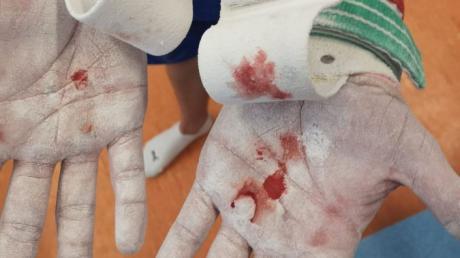 Blutflecken und Magnesiumkarbonat sind an den Händen von Buttenwiesens Zweitligaturner Elija Bach zu sehen. Das intensive Training in der Riedblickhalle hinterlässt deutliche Spuren.