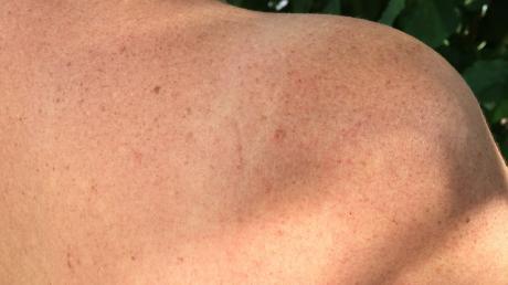 Die Haut ist das größte Organ des Menschen - bei der Krankheit Epidermolysis bullosa ist sie aber auch das empfindlichste. Betroffene leiden unter Wunden und Blasen.