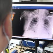 Die vom Coronavirus befallene Lunge eines Patienten am Krankenhaus Aichach.