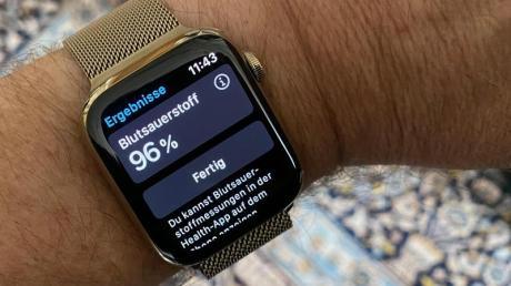 Die Apple Watch Series 6 kann Puls und Blutsauerstoff messen und auch ein EKG erstellen.