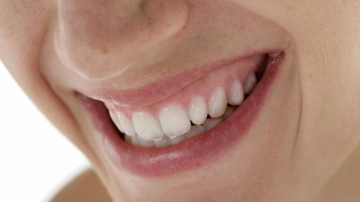 Gelbe Zähne Wieder Weiß
