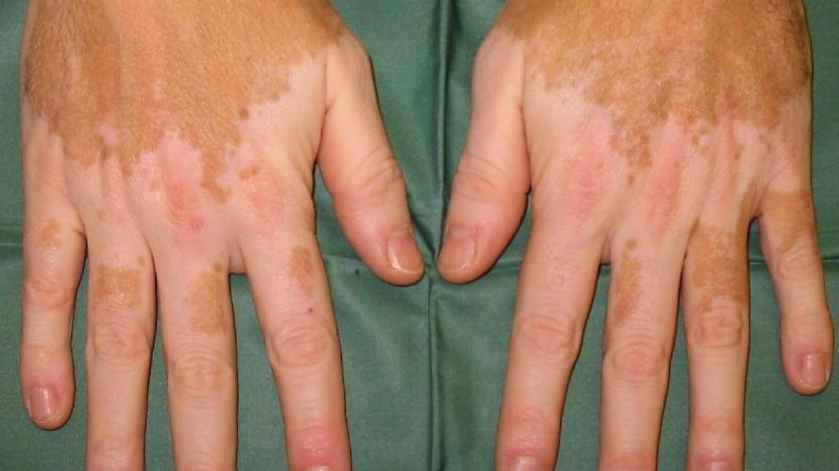 Vitiligo geht oft mit anderen Autoimmunleiden einher - Augsburger Allgemeine
