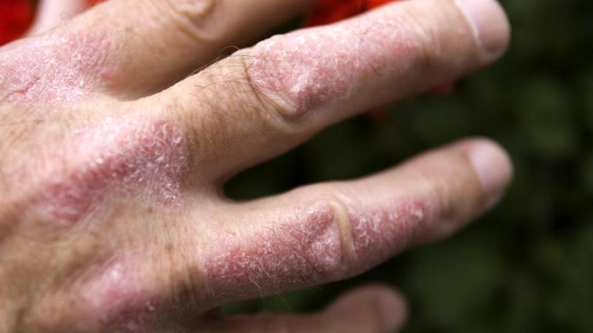 Haut schält sich fingerspitzen Gesundheit: Haut