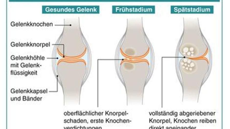 Was ist Arthrose? Symptome und Behandlung der Gelenkerkrankung
