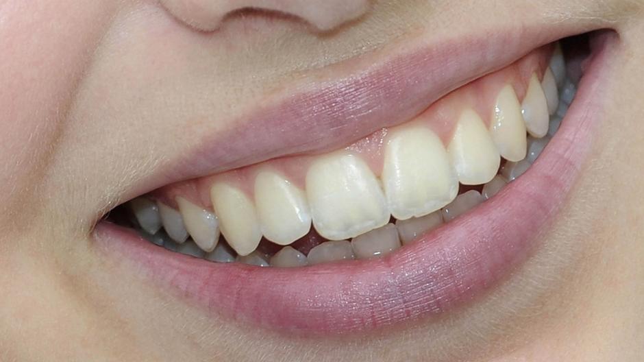 Zahnpflege Tipps Weiße Zähne Lohnt Sich Die Professionelle