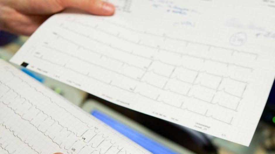 Stolperer und Vorhofflimmern: Wann Herzrhythmusstörungen ein Fall ...