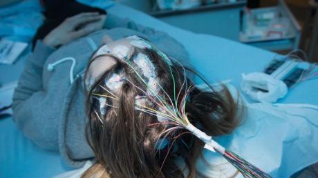 Um die Krankheit Epilepsie zu diagnostizieren, werden Elektroden zur Messung von Gehirnströmen auf der Kopfhaut befestigt.