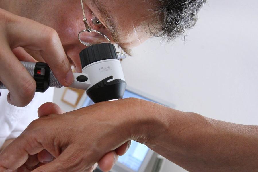 осмотр родинки в дерматоскоп