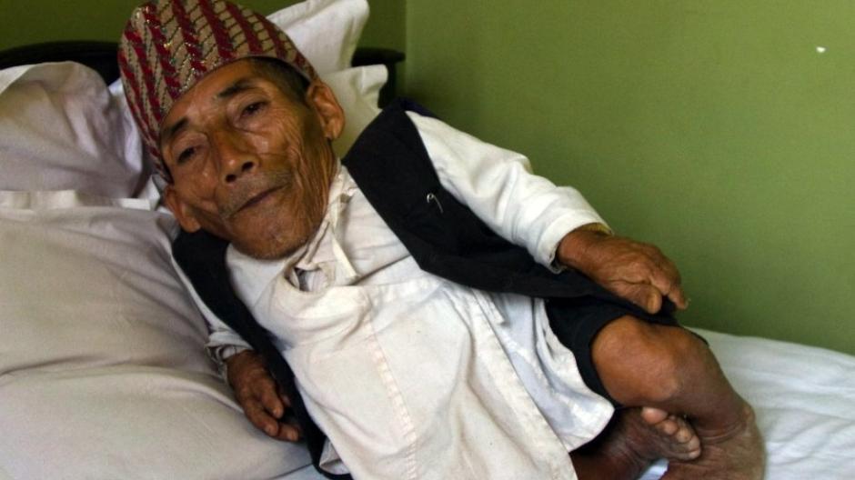 54,6 Zentimeter: Kleinster Mann der Welt stirbt nach