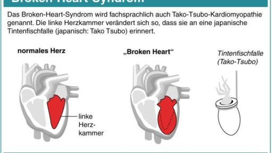 broken heart syndrom