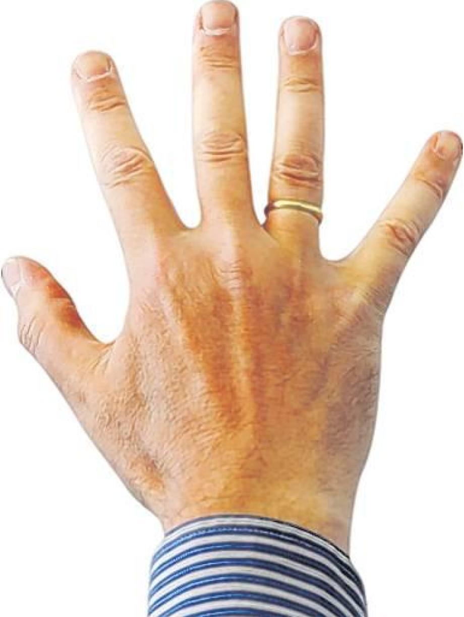 Forschung: Der Ringfinger des Mannes   Augsburger Allgemeine