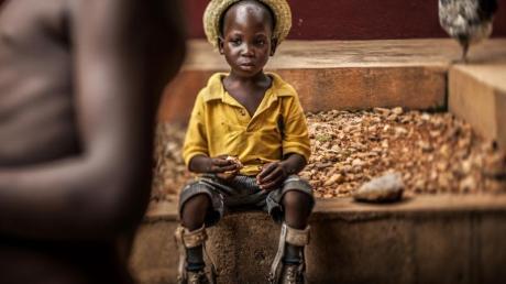 """Das «Unicef-Foto des Jahres 2018"""" zeigt einen Jungen mit Beinprothesen in einem Waisenhaus in Bombouaka, Togo."""