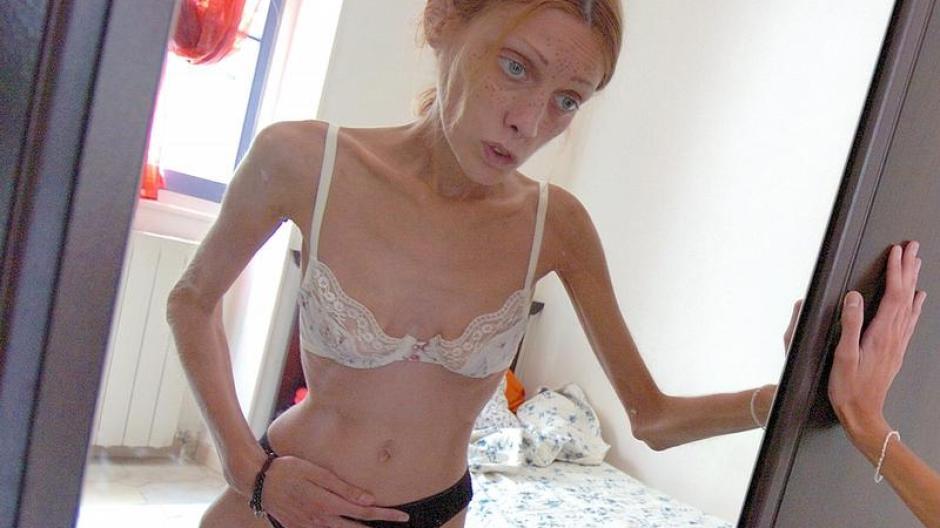 französisches model magersucht gestorben