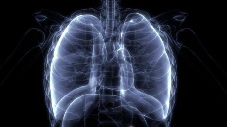 Bei Mukoviszidose verstopft zäher Schleim die Lunge – hier ein Röntgenbild.