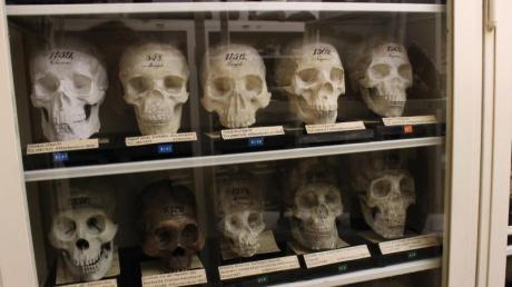 Kabinett des Schreckens: Der Narrenturm mit der größten und ältesten pathologischen Sammlung der Welt.