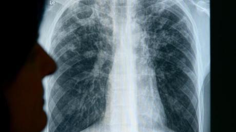 Tuberkulose: Um auszuschließen, dass unter den Infizierten noch mehr Erkrankte sind werden unter anderem Röntgenaufnahmen gemacht.